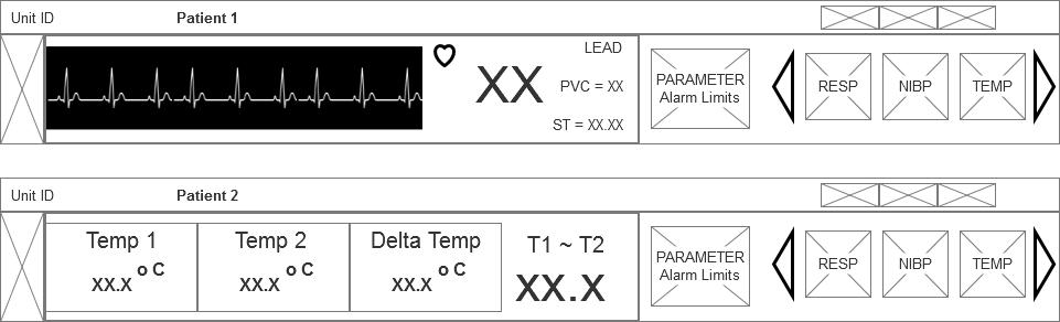 ECG and TEMP